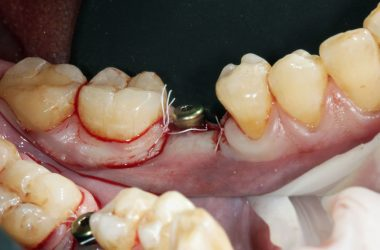 dental implant removal procedure