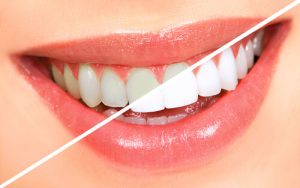 effects of tooth whitening treatments