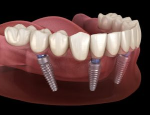 wondering about the all on four dental implants cost
