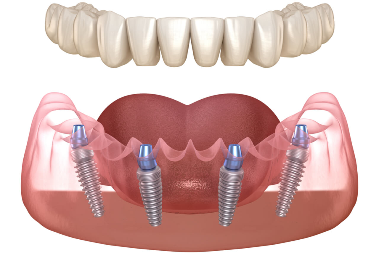all on four dental implants cost