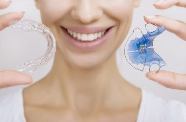What Is The Best Way To Clean Retainers