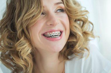 The beautiful woman wears metal braces.