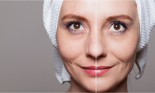after effects of facial enhancement procedures