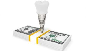 How much does it cost to get a full mouth of dental implants? Money matters.