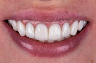Full mouth reconstruction using dental implants.